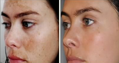 Hydrouinone before and after